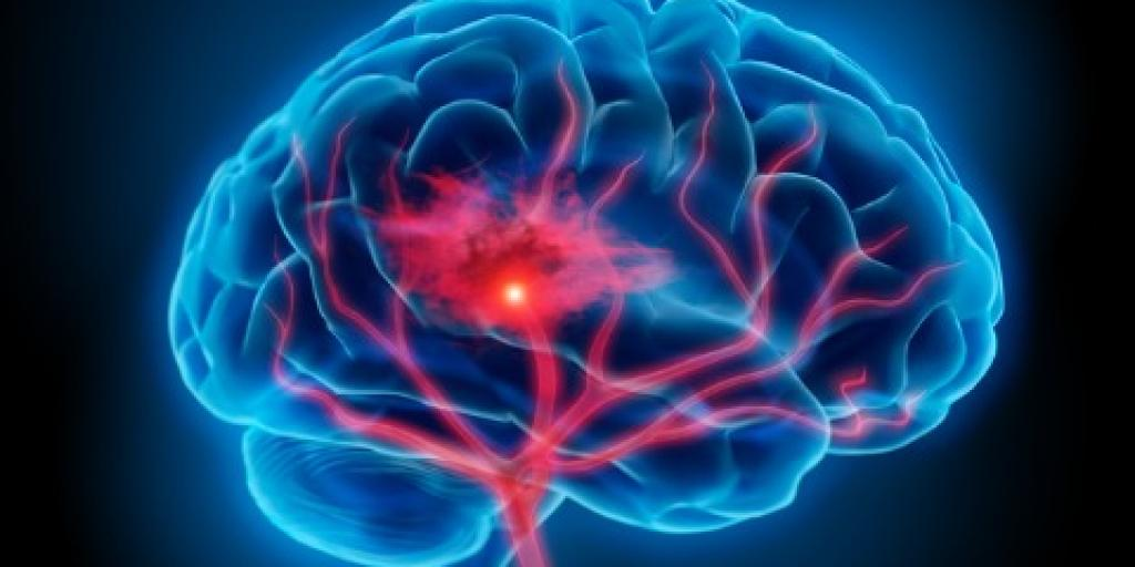 There are two types of strokes, Ischemic strokes and hemorrhagic strokes. Ischemic strokes occur when a clot or mass blocks a blood vessel, thus cutting off blood to a portion of the brain, while hemorrhagic strokes occur when a weakened blood vessel ruptures and spills blood into the brain.